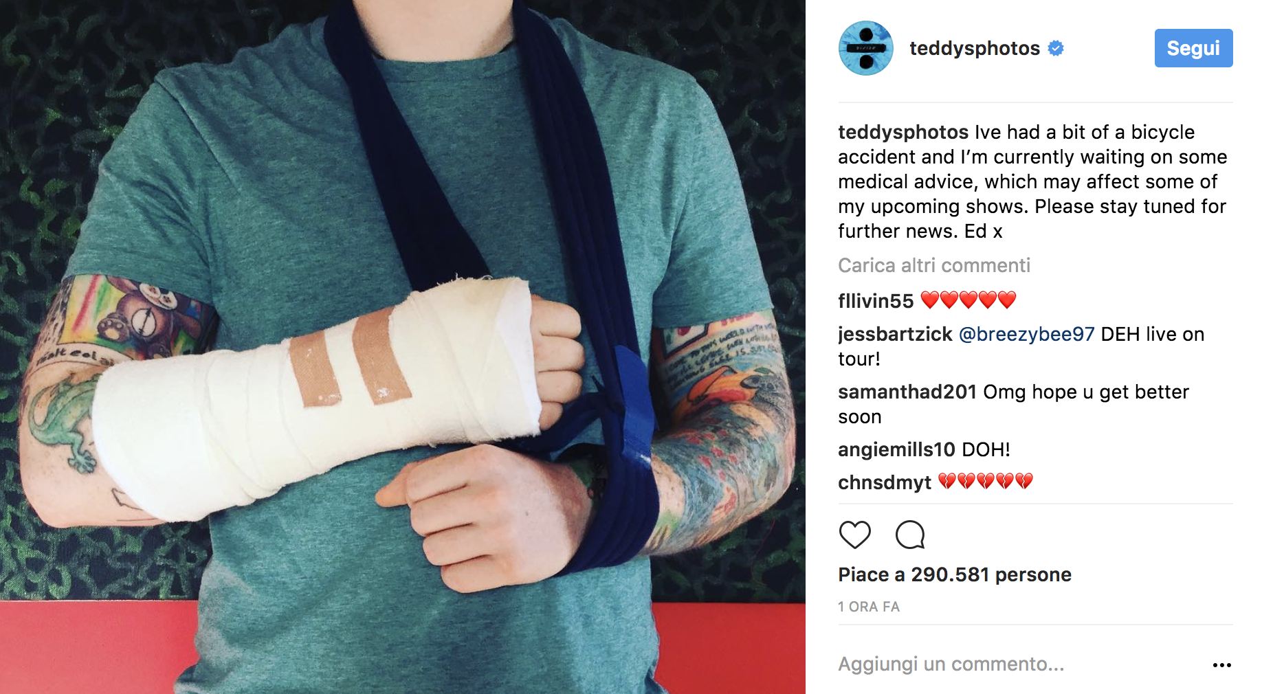 Incidente per Ed Sheeran: tour a rischio?