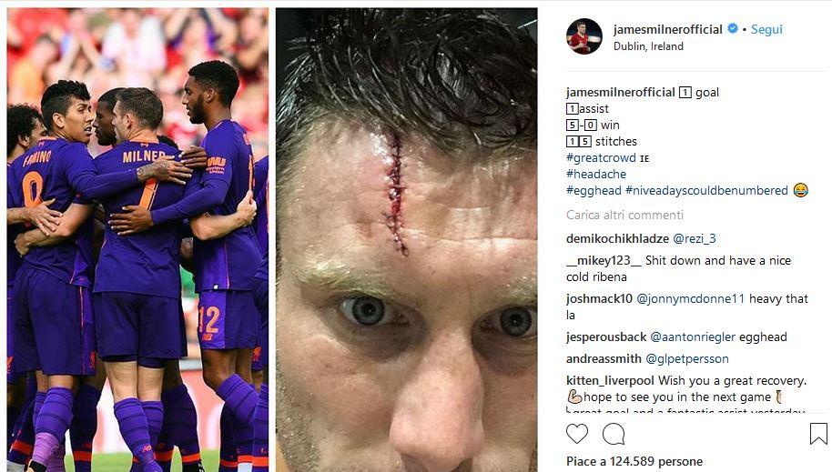 Liverpool, per Milner una ferita shock: 15 punti di sutura