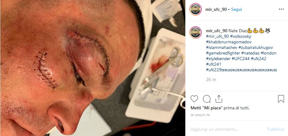 Nate Diaz ferite Jorge Masvidal